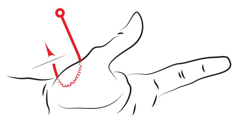 How to: cara melepas kail yang tersangkut di telapak tangan